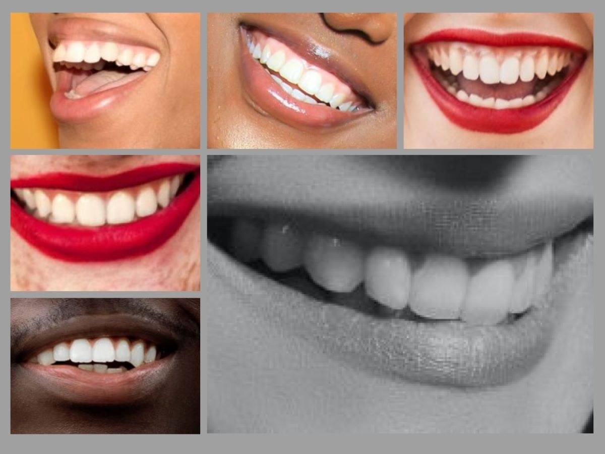 Why you need a dental hygienist. Maintaining beautiful smiles and a key part of the dental team.
