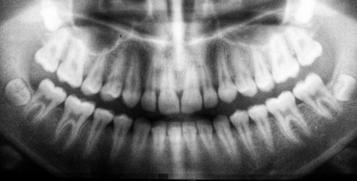 treatment planning dental hygienists